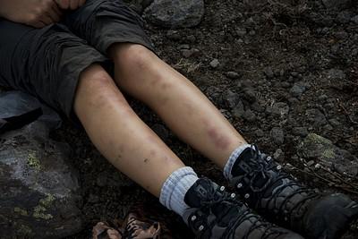 תוצאות ההליכה בסבך - רגליים פצועות